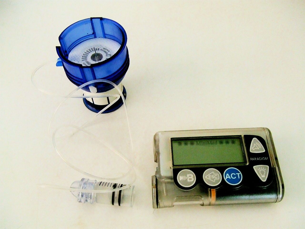 wikipedia-insulin-pump-and-infusion-set-1280.jpg